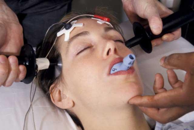 электросудорожная-терапия